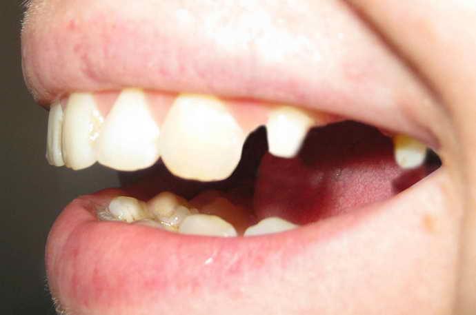 Не вылеченный зуб под коронкой