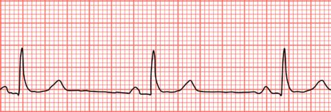 На фото брадикардия – симптом отравления сердечными гликозидами