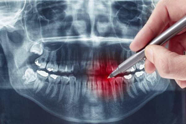 расшифровка ортопантомограммы