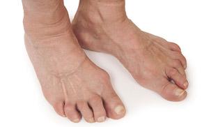 деформирующий остеоартроз ступни