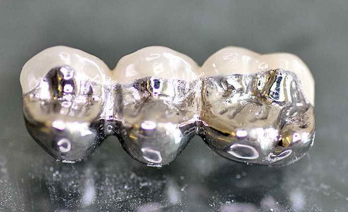 Титановая основа со специфическим керамическим напылением коронки