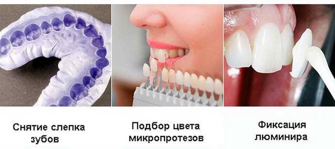 Альтернативные решения исправление кривых зубов винирами