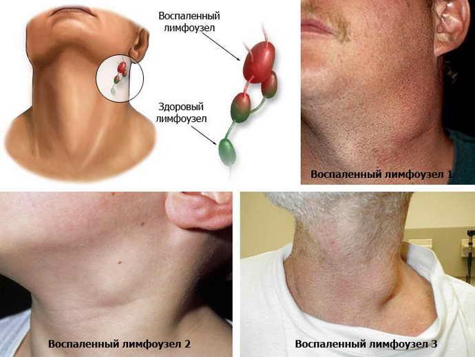 Увеличении лимфоузлов при стоматите