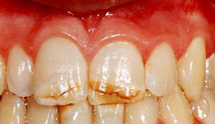 Осложнения от трещин на зубах