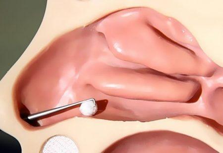 Причины появления глистов в носу и придаточных пазухах, симптомы и лечение