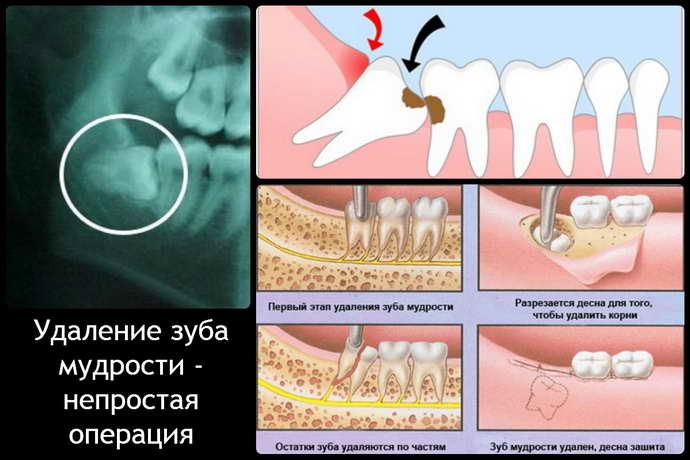 Традиционный процесс удаления зуба мудрости