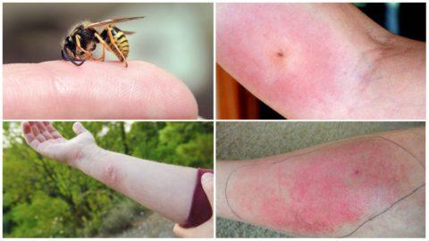 При укусе осы в теле не остается жало