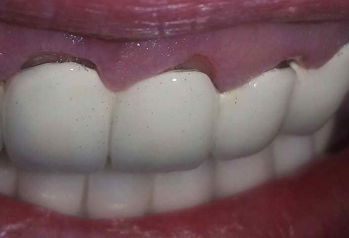 Перебазировка зубных протезов
