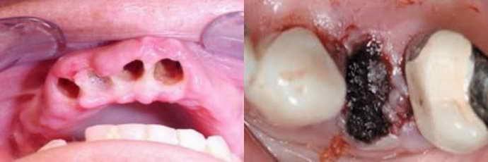 Осложнения от роста зуба мудрости в соседний зуб