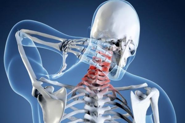 Лечебная физкультура при корешковом синдроме