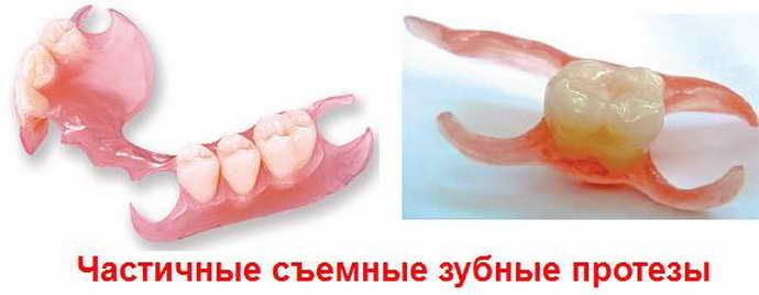 Частичные съемные протезыдля зубов