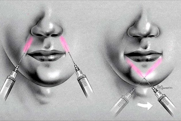 техника внеротовой инфильтрационной анестезии