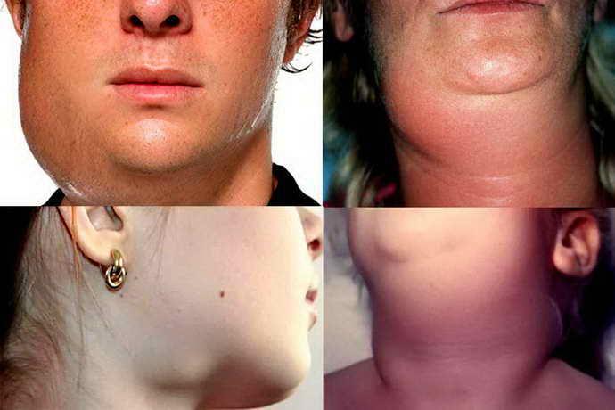 Симптоматика поражений подчелюстной слюнной железы
