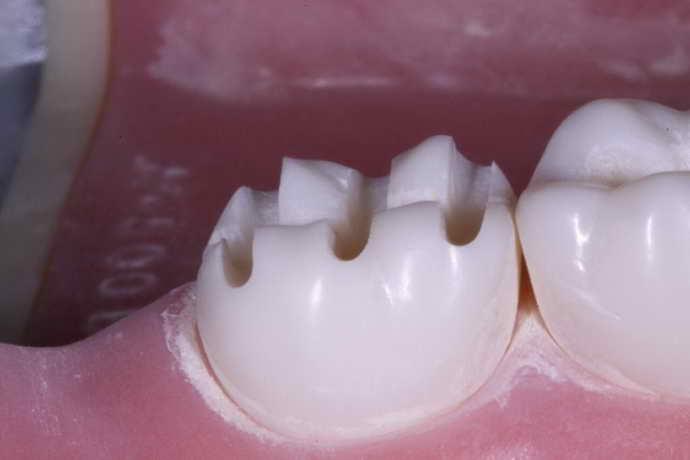 препарирование зуба перед коронкой