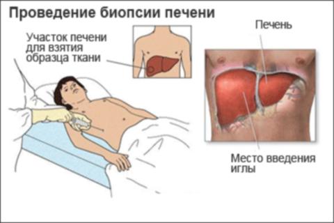 Техника проведения процедуры