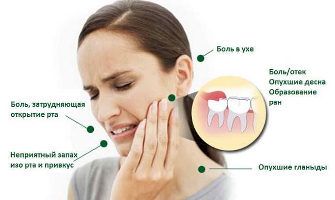Возможные проблемы при росте зуба мудрости