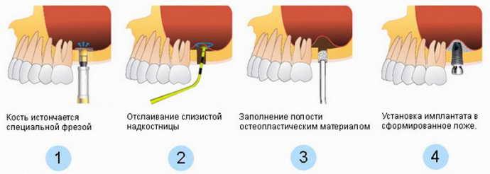 операция закрытого синус лифтинга