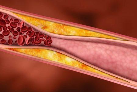Польза овсянки при сахарном диабете 2 типа, правила употребления продуктов, противопоказания и потенциальный вред