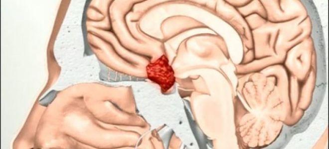 Аденома гипофиза: причины, признаки, лечение, угрозы