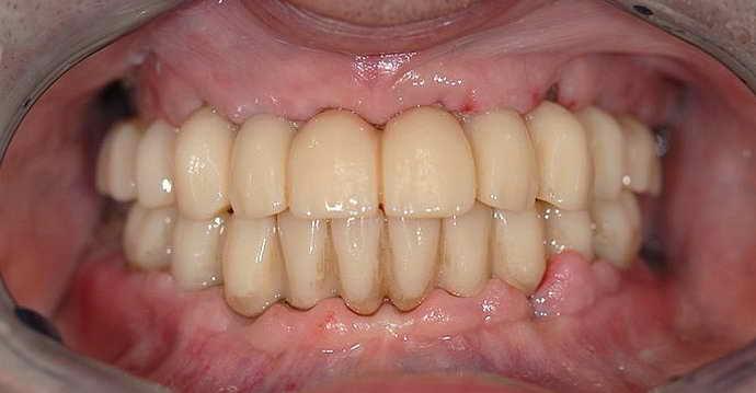 Восстановление зубного ряда мостовидными протезами