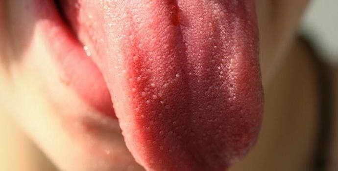 Шишка на языке: причины, диагностика и лечение