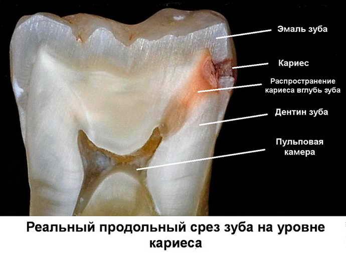 Кариозные образования в организме