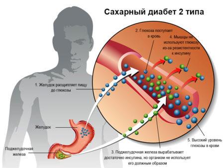 Эффективность сосудистых препаратов при сахарном диабете 2 типа, причины возникновения сосудистых патологий, симптомы и осложнения