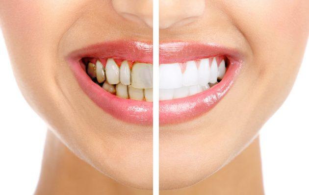 Зубная паста от зубного камня