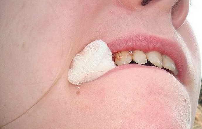 Основы ухода за раной после удаленного зуба