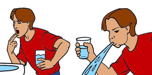 Очищение желудка, вызвать рвоту