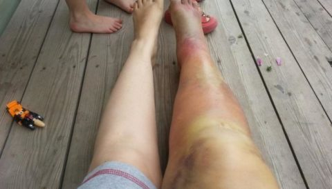 Посинение, отек ноги как проявление признаков