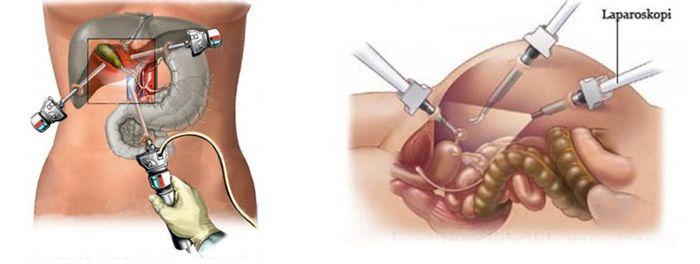 Лапароскопия поджелудочной железы и желчного пузыря