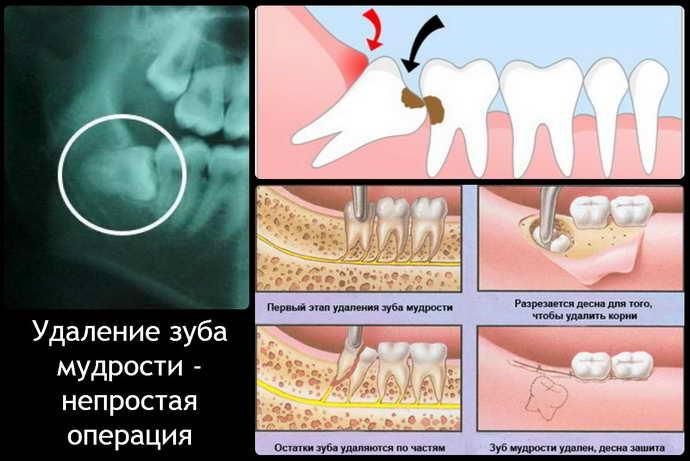 Типичное удаление зуба мудрости