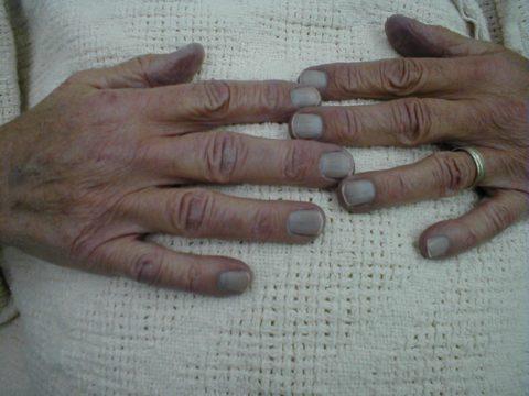 Цианоз ногтей – один из первых признаков гемической гипоксии