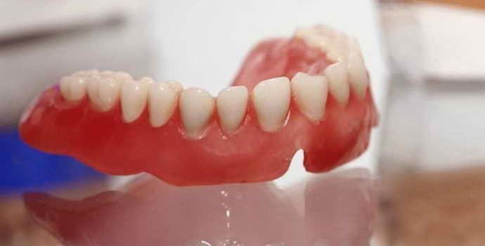 Акриловые зубные протезы, преимущества, противопоказания
