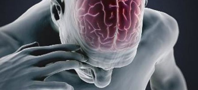 Причины геморрагического инсульта и способы его лечения