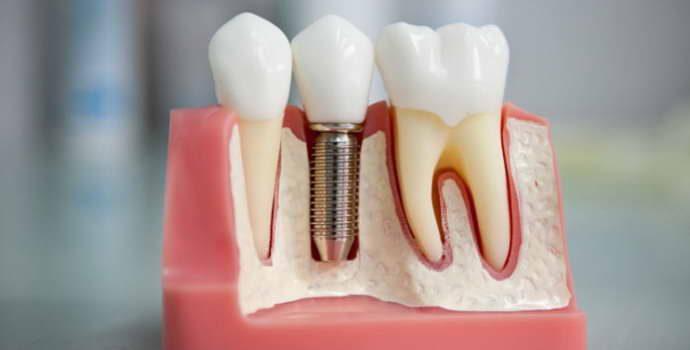 Преимущества и недостатки стоматологического анкерного штифта