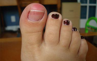 воспаленный палец
