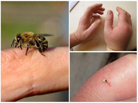 Укус пчелы легко диагностировать по застревающему в коже жалящему аппарату, который вырывается из тела насекомого