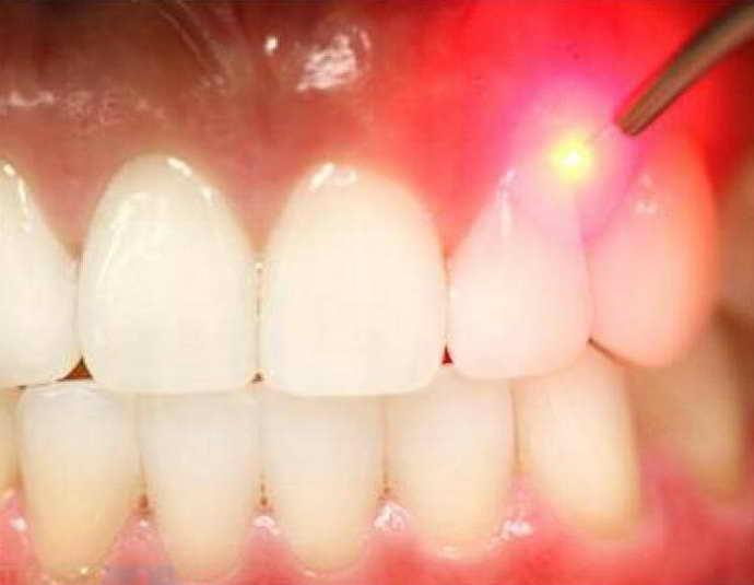 клиновидный дефект зубов лечение