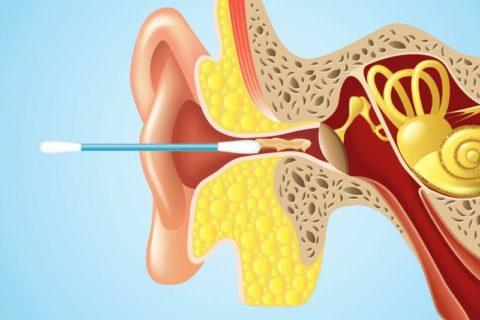 Сера из уха может уменьшить воспаление после укуса осы