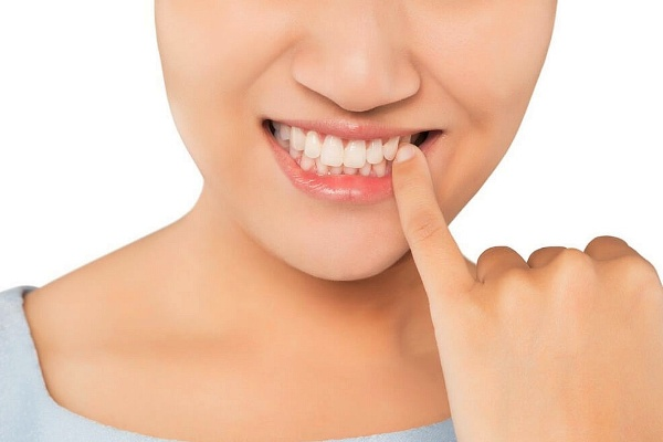 высокая эстетичность - преимущество шинирования зубов