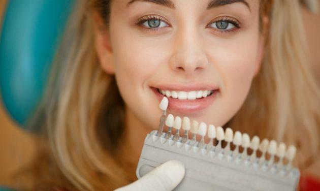 Установка виниров без препарирования позволяет приобрести белоснежную улыбку за пару визитов к стоматологу