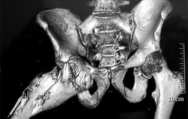Миозит рентген
