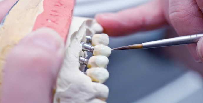 Микропротезирование зубов: показания, противопоказания, особенности процедуры