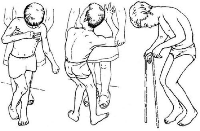 Тактика лечения спастического тетрапареза