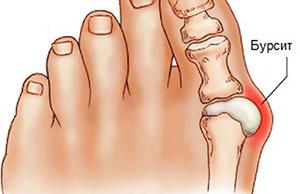 Бурсит на пальце ноги