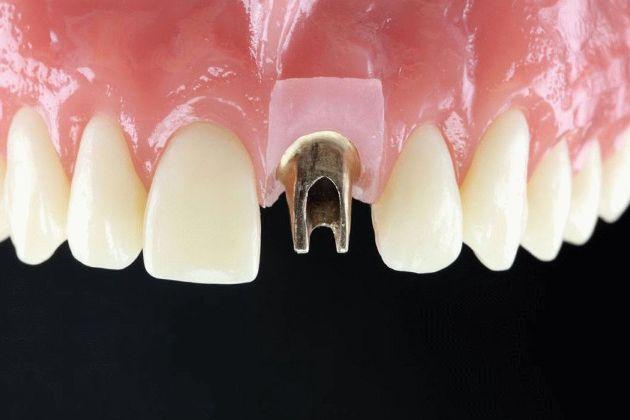 протезирование передних зубов методом имплантации