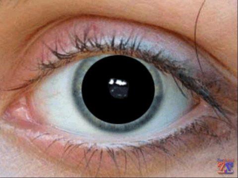 Расширение зрачков – один из симптомов нейротоксикоза
