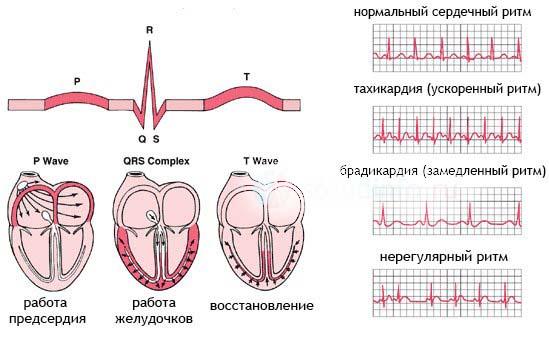 На фото представлены возможные патологические процессы в сердечно-сосудистой системе отравлении дигоксином.
